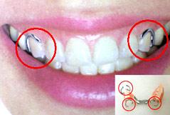 クラスプ付義歯