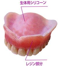 生体シリコーン裏装義歯